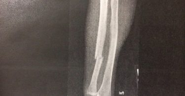 holly-holm-broken-arm